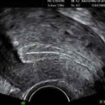 predicting uterine weight from ultrasound measurements